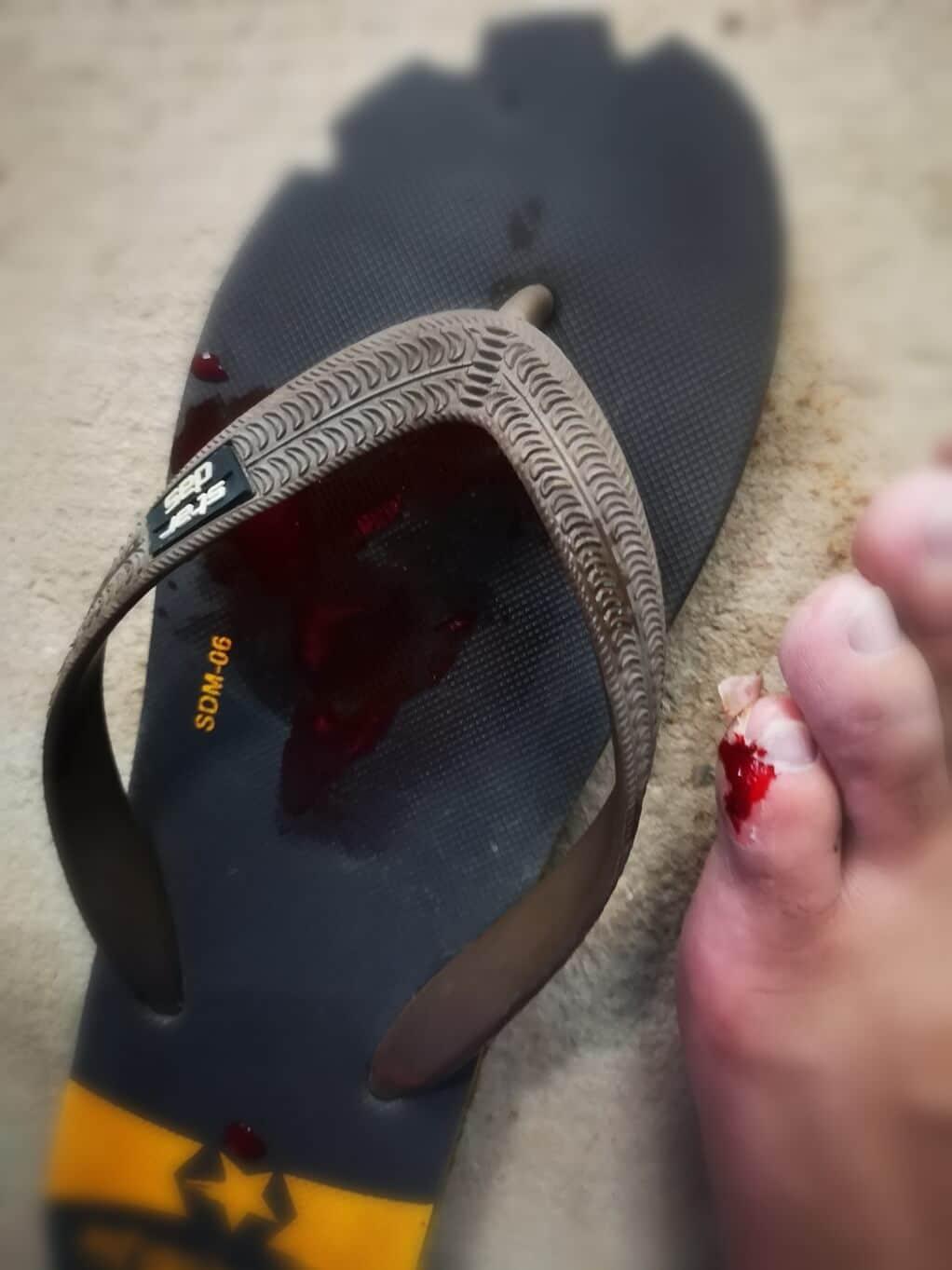 Chris toe injury